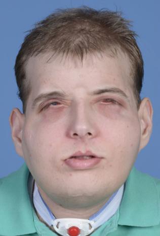 Amazing face transplants (GRAPHIC IMAGES)