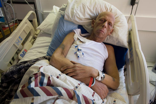 9 11 Health Impact 9 11 Still Killing Pictures Cbs News