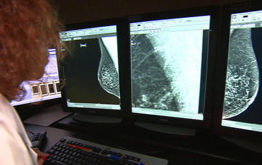 New guidelines recommend mammograms begin at age 50
