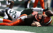 NFL studying rise in concussions