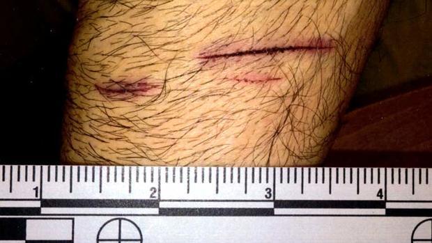 Art Gonzales手臂上的划痕
