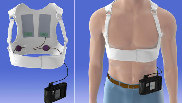 wearable defibrillator may help some heart patients   cbs news