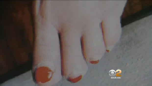 Woman gets pedicure loses toe sues nail salon cbs news for 24 hour nail salon los angeles
