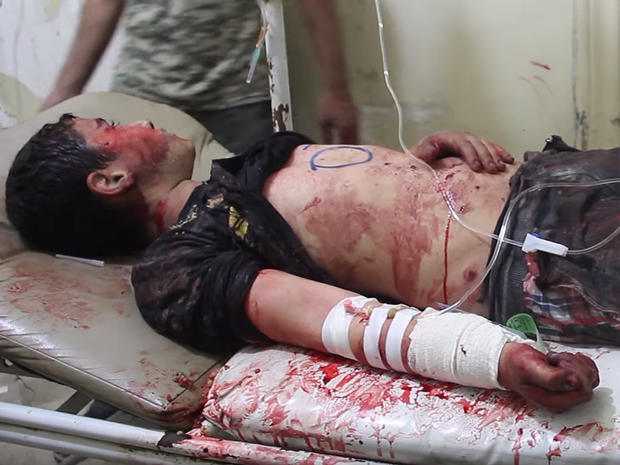 A boy injured in a strike that destroyed the al-Quds hospital in southern Aleppo, Syria, recieves treatment at another facility in the front-line city, in a screengrab from video posted online by Syrian anti-government activists