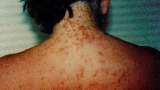 sea-lice-rash.png