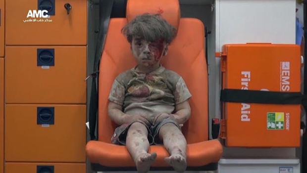 阿勒颇受伤,boy.jpg