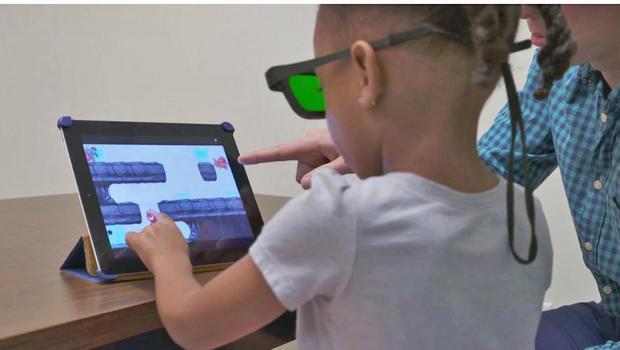 Resultado de imagen de ipad games amblyopia