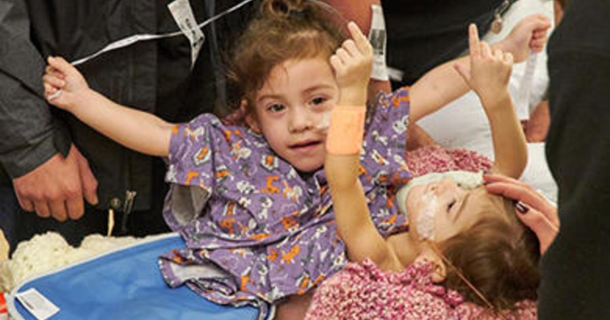 Conjoined twins survived a marathon surgery and became two little girls  early Wednesday morning, CBS Sacramento reports. Since birth, 2-year-old  Erika and ...
