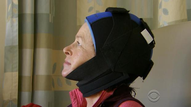Scalp cooling caps prevent hair loss for cancer patients, study shows