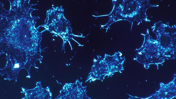 http://cbsnews2.cbsistatic.com/hub/i/r/2017/03/10/d6edf067-51ea-415f-a935-d61dc67c73ab/thumbnail/620x350/bc967f4a2f9c570b37bad53854dd99e5/cancer-cells-in-culture-national-cancer-institute-nih.jpg