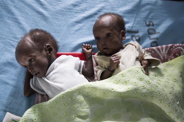 Starving in South Sudan