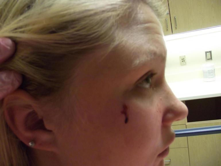 ncis-sarah-injury.jpg