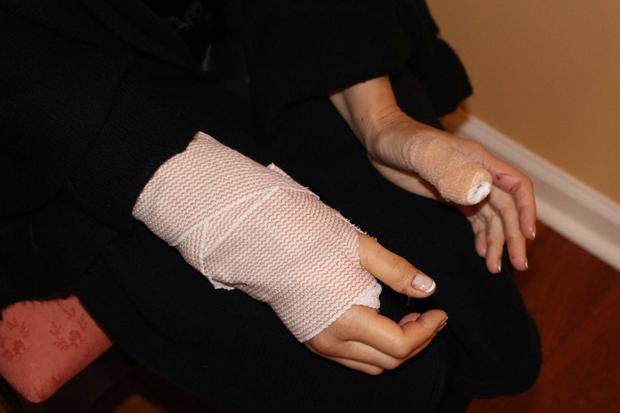 Sue Reuschel's injuries
