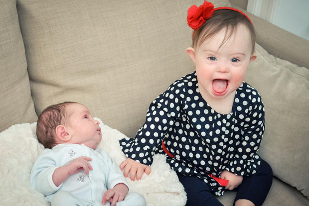 Down Syndrome Adults Having Children