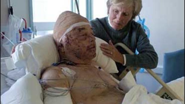 mountain lion attack victim worsens   cbs news