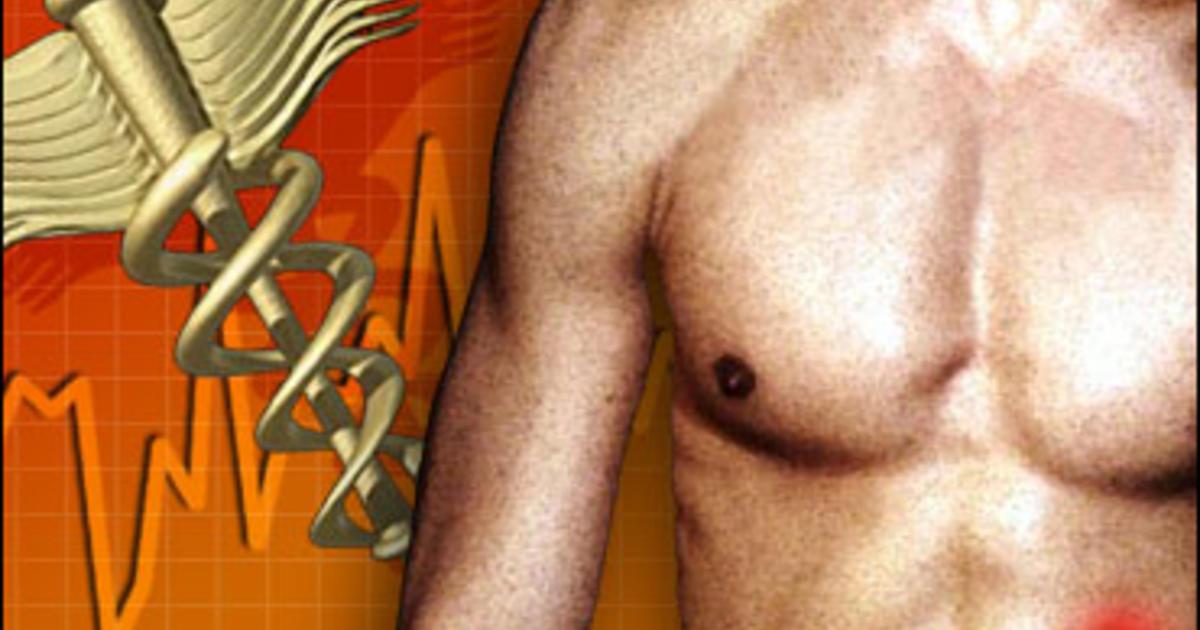 Aspirin May Help Prevent Colon Cancer Cbs News