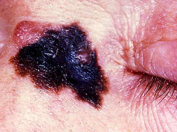 Skin cancer or mole? How to tell