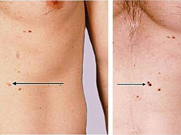 Basal cell carcinoma on the nose - Skin cancer or mole? How