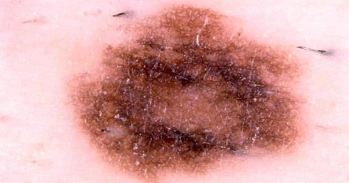 Basal Cell Carcinoma On The Nose Skin Cancer Or Mole How To Tell Cbs News