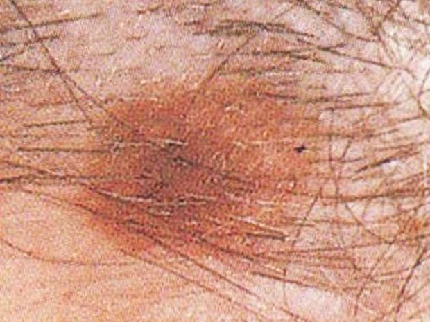 Dysplastic nevus on the scalp - Skin cancer or mole? How to