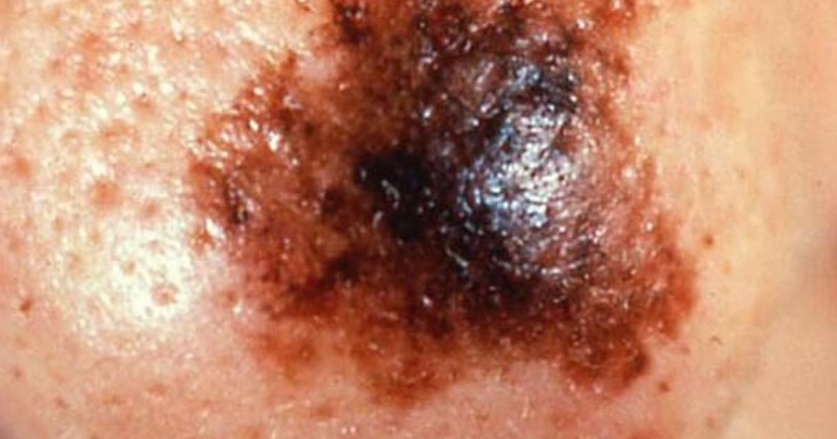 Persistent Pimple Could Be Basal Cell Carcinoma Skin Cancer Or Mole How To Tell Cbs News