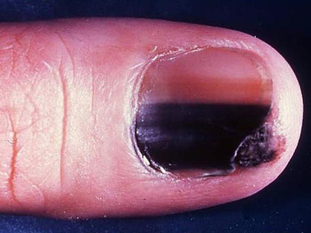 Melanoma under the fingernail - Skin cancer or mole? How to tell ...