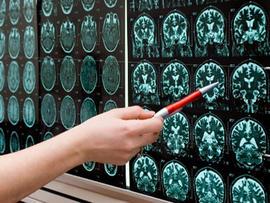 CAROUSEL: brain scan mri xray stroke tumor dementia alzheimers concussion