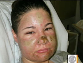 Bethany Storro, 28, after random attack with acid by total stranger in Vancouver, Wash.
