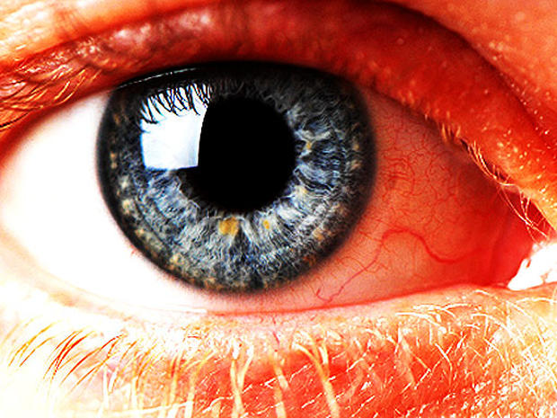 12 scary things your eyes say about your health - Photo 1