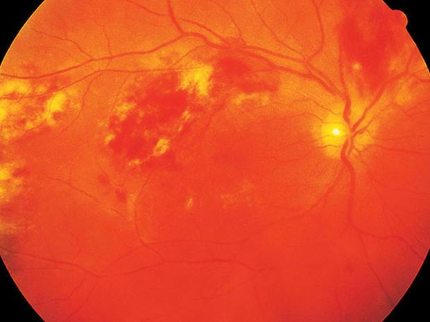 HIV-AIDS-retinitis_1.jpg
