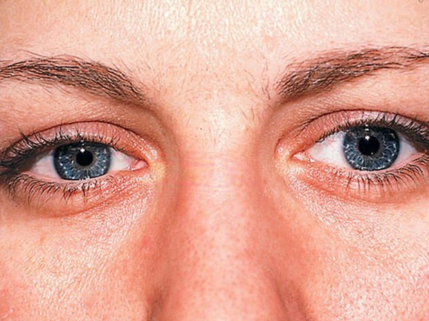 Horners-syndrome.jpg