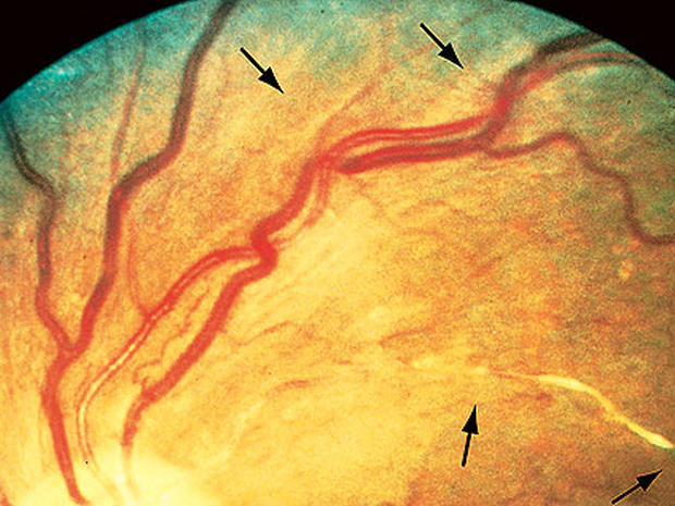 12 scary things your eyes say about your health