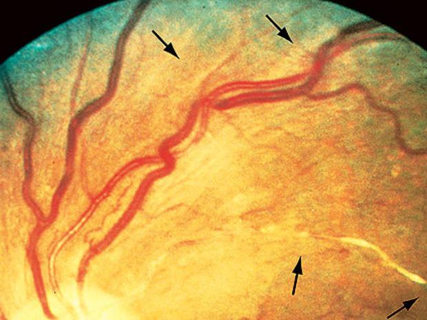 hypertensive-retin-2.jpg