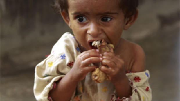 Pictures Of Starving Kids In Africa