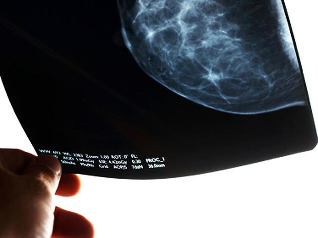 mammogram-2-4x3.jpg