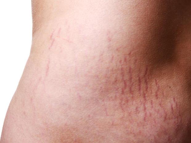 stretch-marks-iStock_000010.jpg