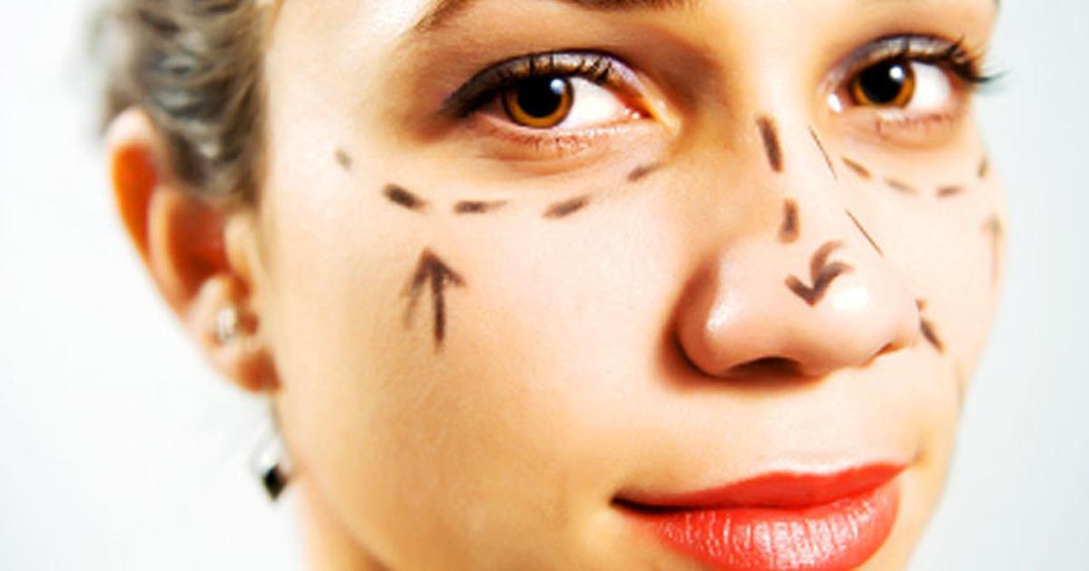 Upper lip lift - 13 bizarre but popular plastic surgery procedures