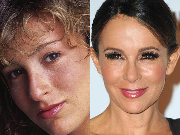Jennifer Grey - Celebrity Plastic Surgery Disasters ...
