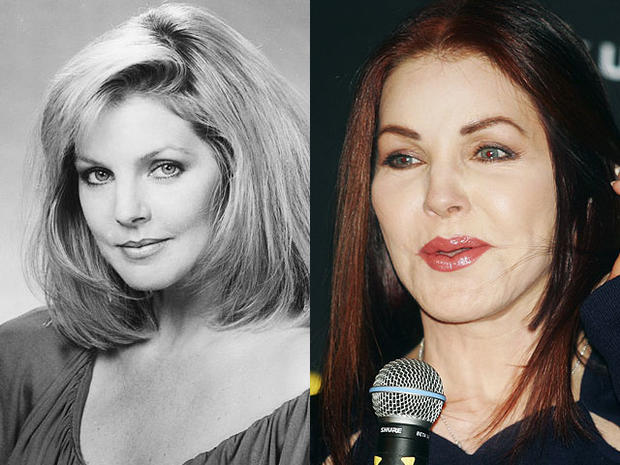 Priscilla Presley Celebrity Plastic Surgery Disasters Cbs News