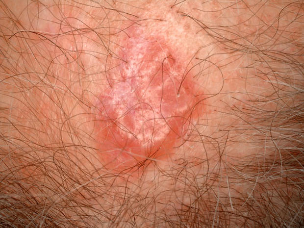 Is it skin cancer? - Is it skin cancer? - Pictures - CBS News