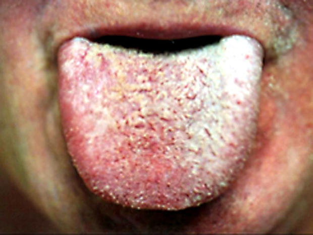 Coated White Tongue Foul Mouth What Yucky Signs Say About Your