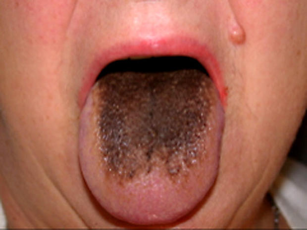 Foul mouth: what yucky signs say about your health