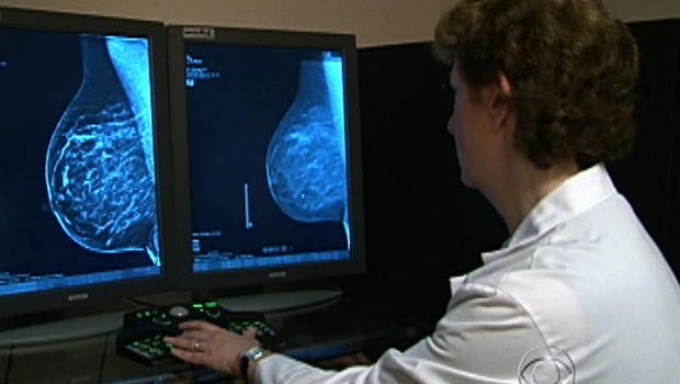 3D mammogram technology