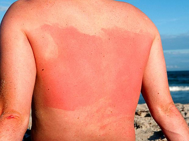 sunburn_iStock_000011444844.jpg