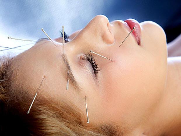 acupuncture_iStock_00001447.jpg