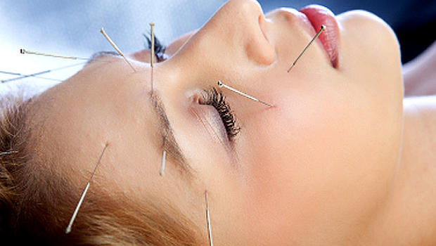Image result for Acupuncture Treatment istock