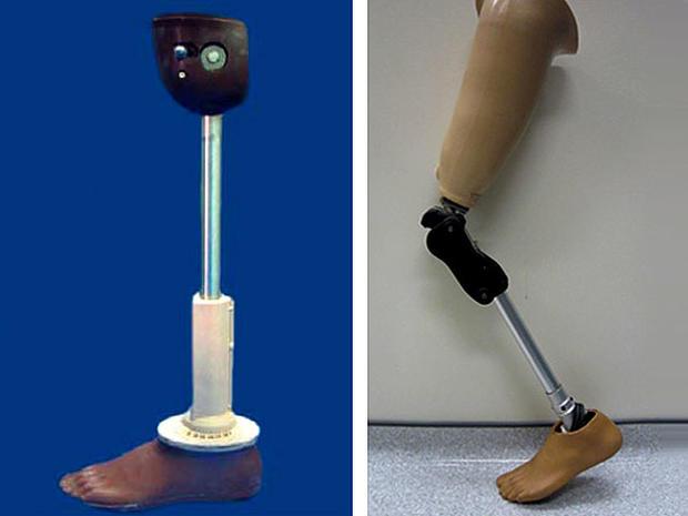 prosthetic_leg.jpg