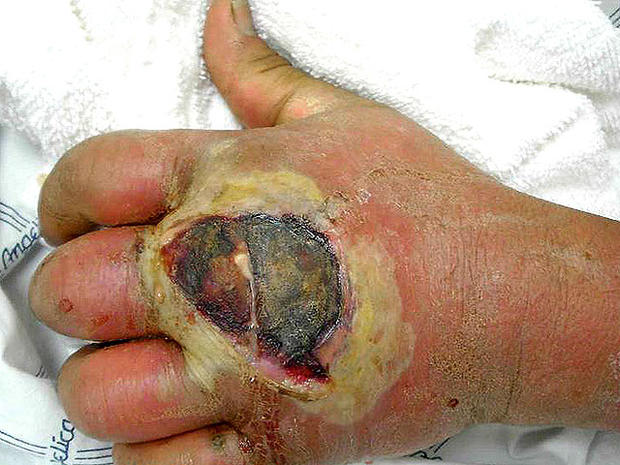 Deadly skin infection? 12 graphic photos that could save your life