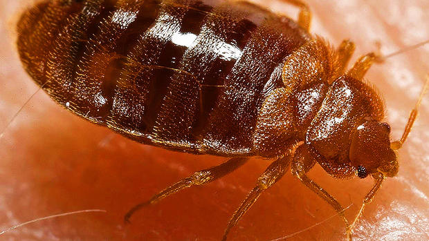 Yikes! Bedbugs!! 15 best bug-busting tips for travelers