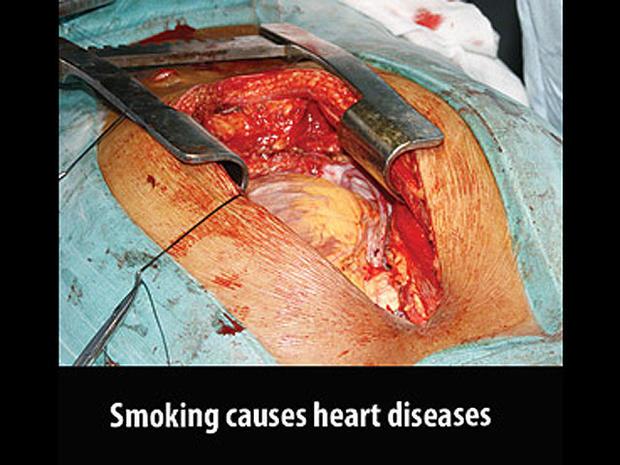 mauritius-tobaccowarninglabel.jpg